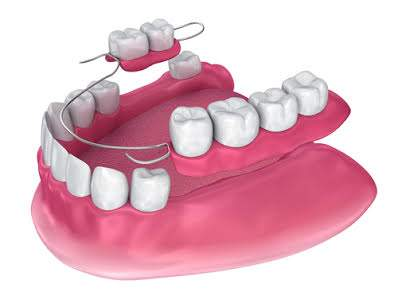 Partial dentures being laid down next to teeth